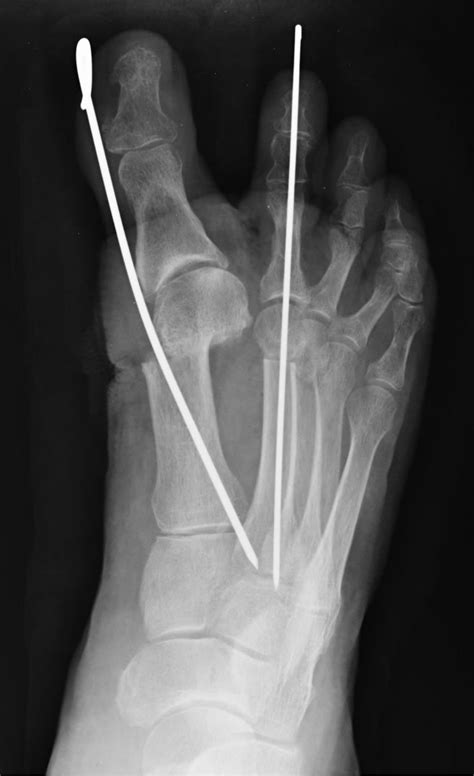 Minimally Invasive Surgery of the Forefoot: Current