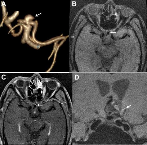 Wall enhancement ratio and partial wall enhancement on MRI