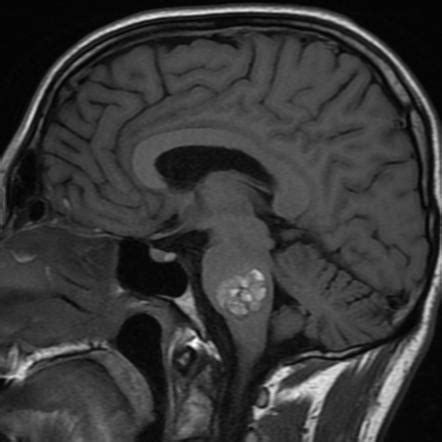 Cavernous malformation of the pons | Image | Radiopaedia