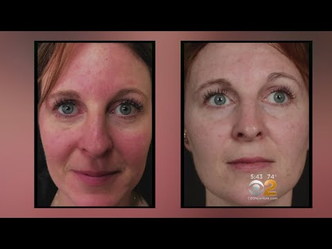 Laser Treatments | The Grand Beauty Spa