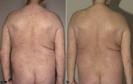 Ten-year Experience of Bexarotene Therapy for Cutaneous T