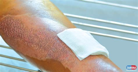 Types of Dressings for Burn Wounds   Burn Injury   Burns
